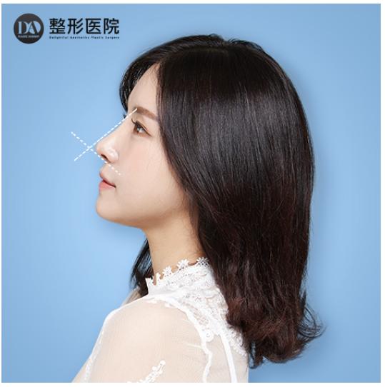韩国整容:韩国DA整形医院隆鼻崇尚精雕细琢的美