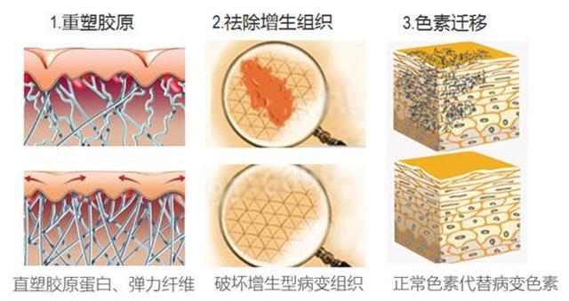 冰王肤乐肝素修痕凝胶 引领专业祛疤发展新时代