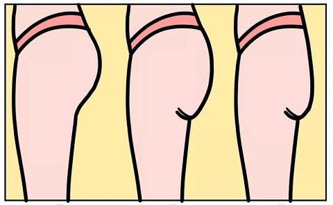 塌屁股小肚腩的身材焦虑,轻膳美代餐粉帮你解决